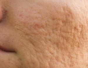 AcneScars1_Dermatology Times_Atro